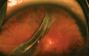 Retinal detachment associated with a giant retinal tear