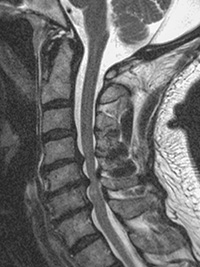 MRI of cervical spinal stenosis in a patient with cerebral palsy