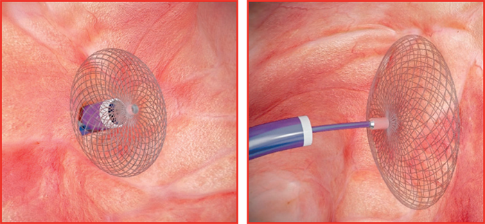 Placement of AMPLATZERTM PFO Occluder