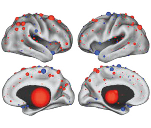 neuroanatomical distribution of the most discriminating connectivity features