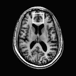Ketamine in MRI scan