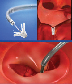 The MitraClip device reduces mitral regurgitation.