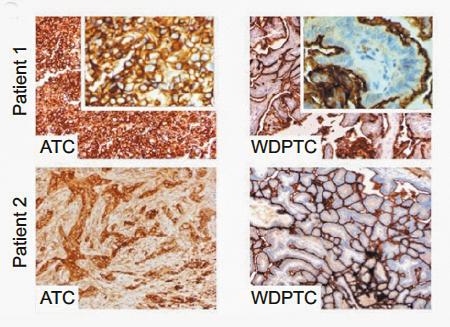 Representative ICAM-1-specific IHC images of anaplastic thyroid cancer (ATC) patient-derived tissue.