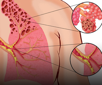 COPD: Converging Expertise on a Challenging Lung Disease