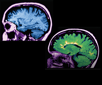 A Multifaceted Look at Multiple Sclerosis