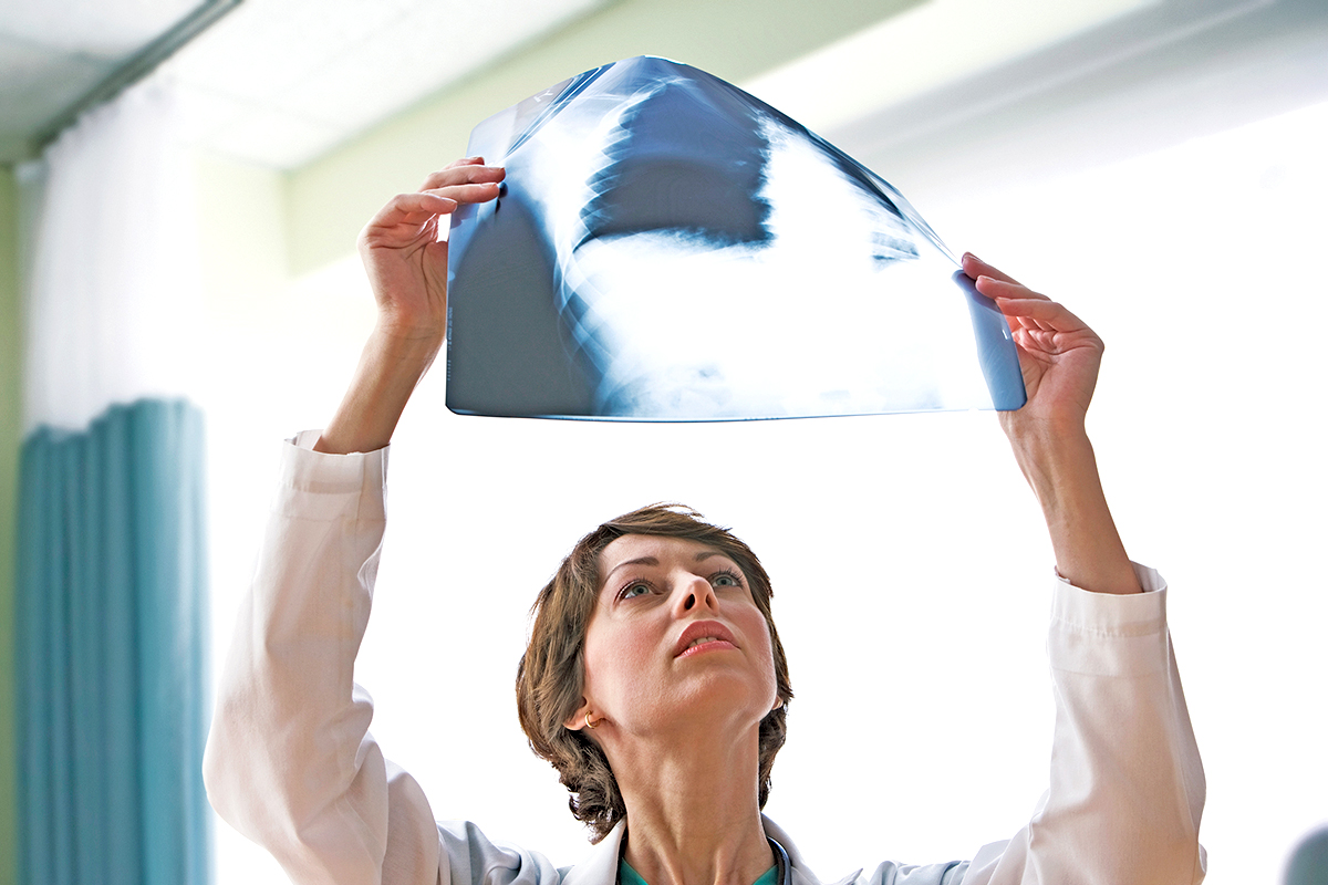 image of healthcare worker examining an x-ray scan