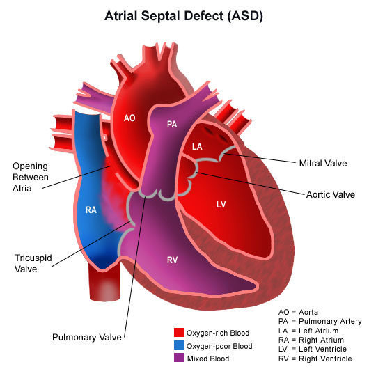 Illustration of the human heart with an atrial septal defect