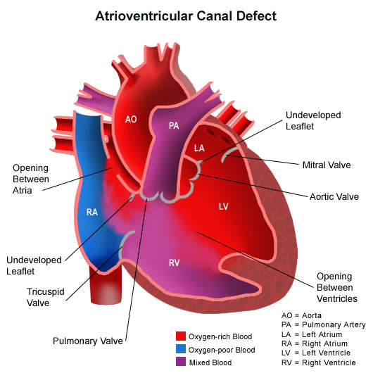 Illustration of the human heart with an atrioventricular canal defect
