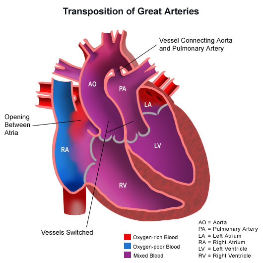 Illustration of the human heart with transposition of the great arteries