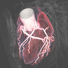 Heart Scan Image