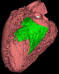 3-dimensional reconstruction of gated cardiac CT