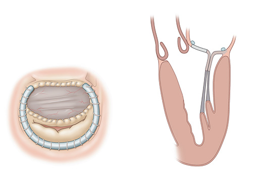 illustration of two different views of Robotic septal myectomy with anterior leaflet patch.