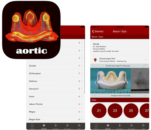 images of aortic valve app UI