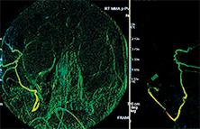 middle meningeal arterial embolization