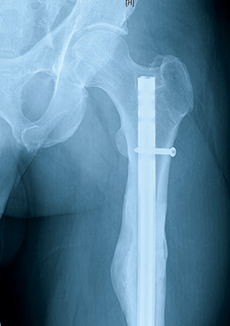 left femoral shaft fracture x-ray
