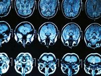 brain scan son a light box