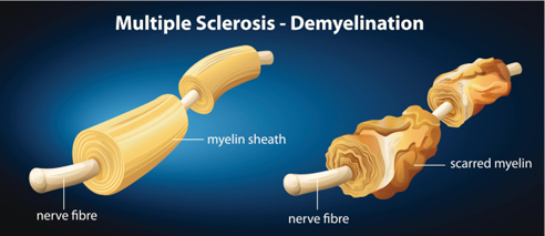illustration, nerve fibers of patient with multiple sclerosis