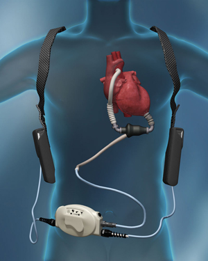 Illustration of human body with implanted ventricle assist device
