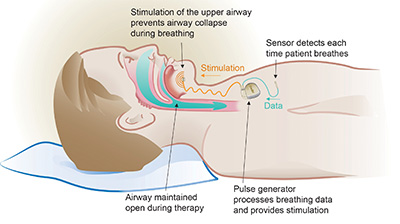 Inspire Therapy Implantable upper airway stimulation device