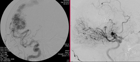 scan of arteriovenous malformation before and after surgery