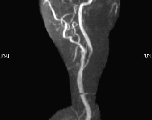 Magnetic resonance angiography of artery with carotid stenosis