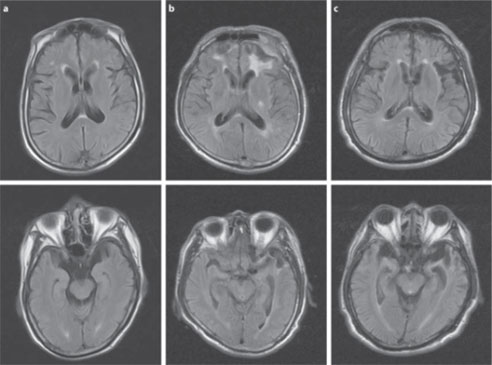 Series of MRI brain scans of patient with dementia