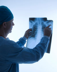 Doctor in scrubs examines chest x-ray