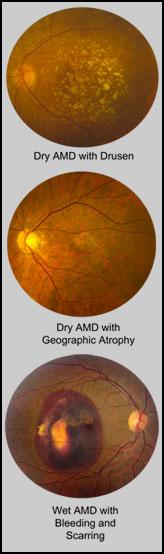 illustrations of eyes with macular degeneration