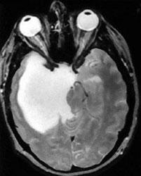 MRI scan of brain with a glioblastoma tumor