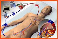 ECMO with two site cannulation.