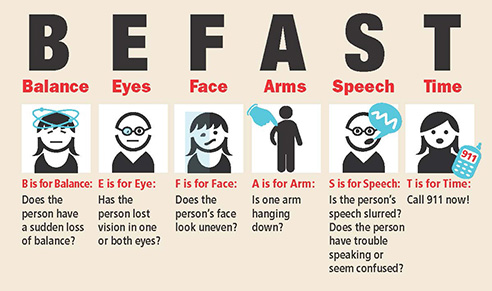 Stroke Be Fast, know the symptoms of stroke and act fast