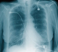 Chest X-ray showing chronic obstructive pulmonary disease, COPD