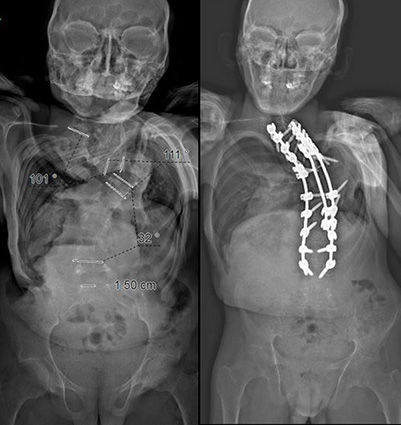 xray before and after (front view)