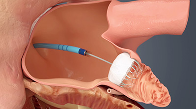 WATCHMAN™ Left Atrial Appendage Closure Device,