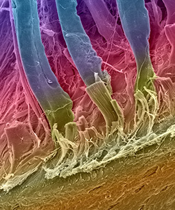 illustration of tendon-to-bone healing that include tissue engineering