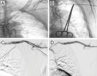 Safe closure of a percutaneous axillary artery access site