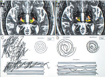 Pre-treatment and post-treatment MRI and patient drawings