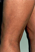 spider-veins-after.jpg