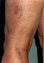 spider-veins-before.jpg