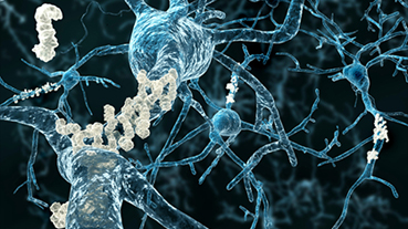vector image of neurons with amyloid plaques
