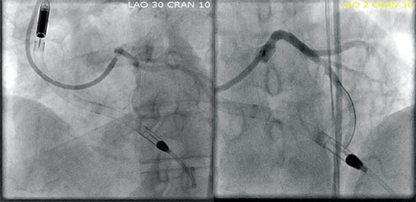Stent and LVAD placement, Img01 and Img02