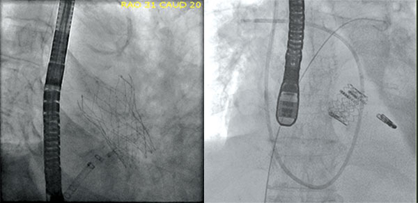transcatheter aortic valve replacement, Img01 and Img02