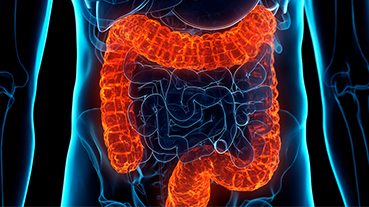 image of Ulcerative Colitis
