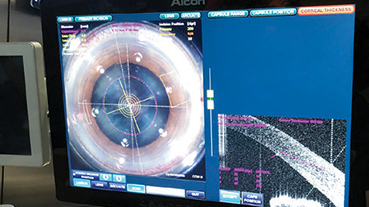 image of monitor and program used during eye surgery