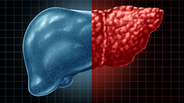 3D illustration of fatty liver disease and hepatic steatosis