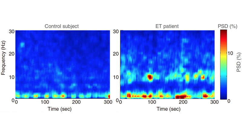 Overactive Brain Waves Trigger Essential Tremor