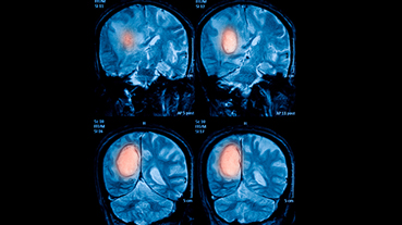 MRIs of brain tumor